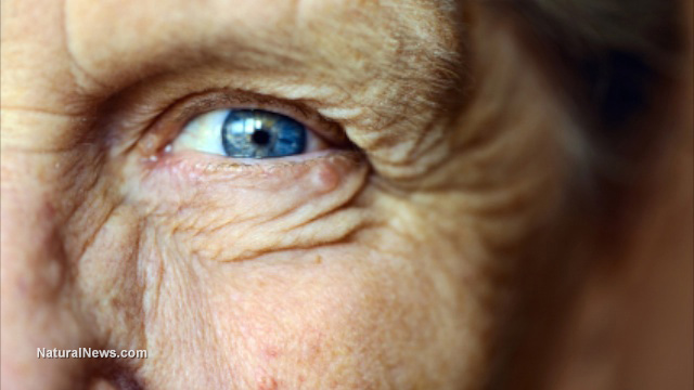http://naturalnews.com/gallery/640/BodyParts/Eye-Old-Lady.jpg