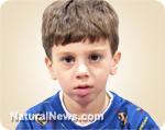 The unilateral facial palsy Education