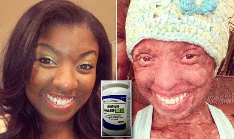 "Image: FDA-approved anti-seizure medication causes 90 percent of skin to ""MELT OFF"" a 26-year-old graduate student"