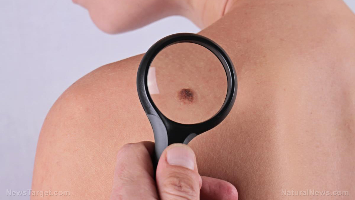 Image: Do your moles put you at risk of melanoma? Find out through ABCDE