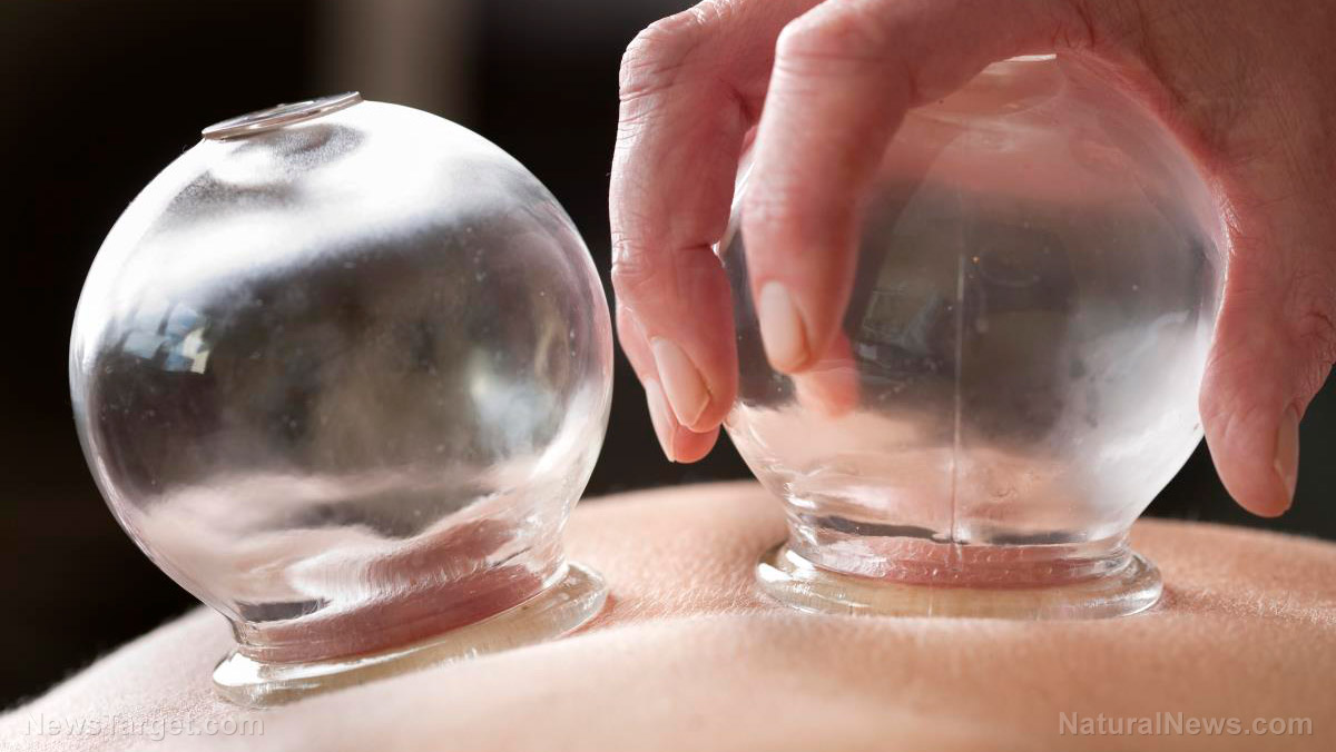 Image: Can dry cupping relieve chronic lower back pain?