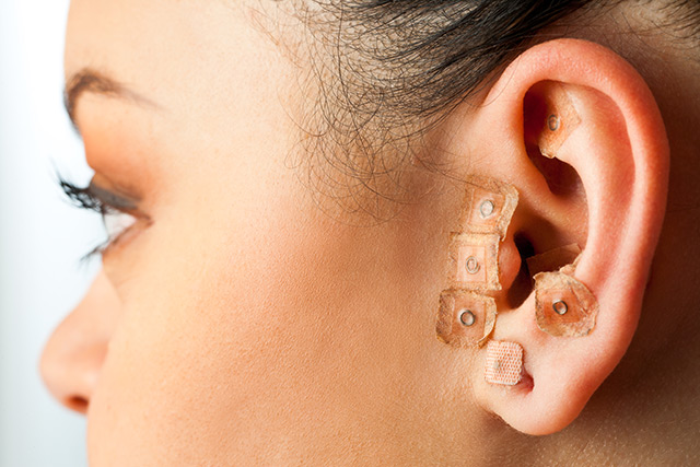 Image: Ear acupuncture effective at improving, maintaining effectiveness of substance abuse treatment outcomes
