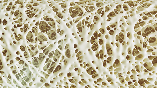 Image: Osteoporosis and men: Pharmaceuticals may increase the risk of bone fractures